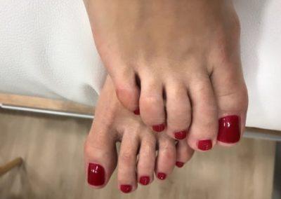 pedicura-zaragoza-la-vita-nails