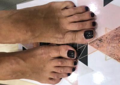pedicura-zaragoza-la-vita-nails-negra